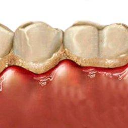 Dentífricos encías sensibles