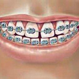 Dentífricos ortodoncia